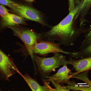 Celulele stem UCMSC