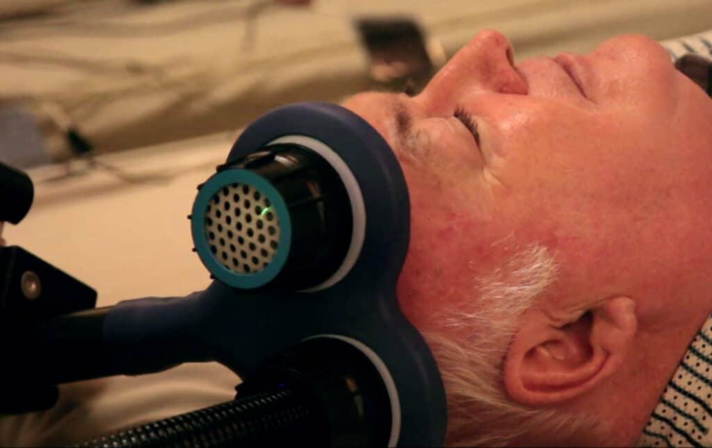 Stimularea magnetică transcraniană