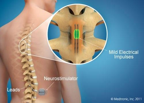 Stimularea epidurala